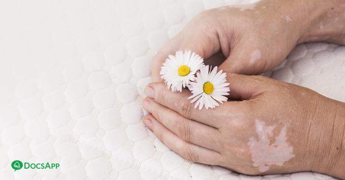 Leucoderma: Causes, Symptoms & Treatment